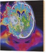 Brain Malfunction Wood Print
