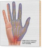 Carpal Tunnel Syndrome, Illustration Wood Print