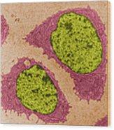Chondrocytes, Tem Wood Print