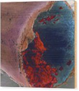 Coloured Sem Of A Blood Clot In Coronary Artery Wood Print
