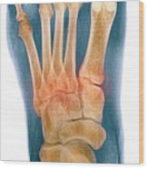 Crushed Broken Foot, X-ray Wood Print by