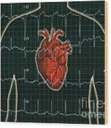 Ekg And Heart Over Torso Wood Print