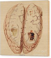 Extravasated Blood, Brain Wood Print