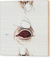 Eye Inflammations, Historical Wood Print