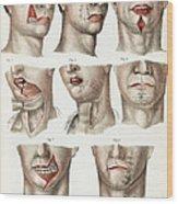 Facial Surgery, Illustration, 1846 Wood Print
