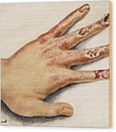 Hand With Roentgen Ray X-ray Wood Print