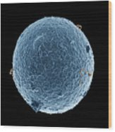 Human Egg Cell And Sperm Cells Esem Wood Print