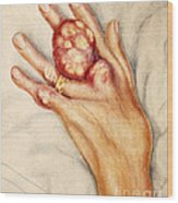Left Hand With Tophus From Chronic Gout Wood Print