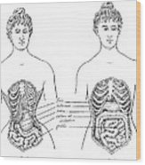 Medical Crimes Of The Corset, 1908 Wood Print