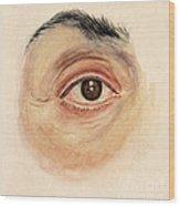 Melanoma Of Iris, Medical Illustration Wood Print