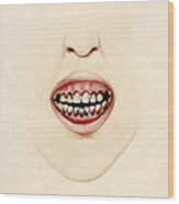 Mouth Of Gouty Patient, Illustration Wood Print