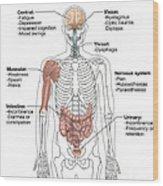 Multiple Sclerosis Symptoms Wood Print