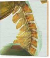 Neck Vertebrae Flexed, X-ray Wood Print by