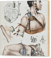 Operative Surgery, Illustration, 1846 Wood Print