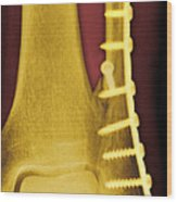 Pinned Ankle Fracture, Coloured X-ray Wood Print