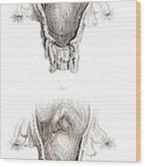 Placenta Previa, Illustration Wood Print