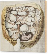 Placenta With Tumors, Illustration, 1836 Wood Print