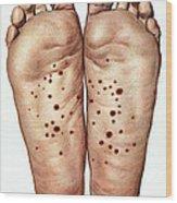 Psoriasis Of Feet, Illustration Wood Print