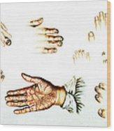 Psoriasis, Syphilis, Onychomycosis Wood Print