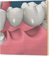 Restorations For Missing Teeth Implants, Dentures And Bridges Wood Print