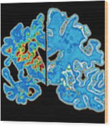 Sectioned Brains: Alzheimer's Disease Vs Normal Wood Print