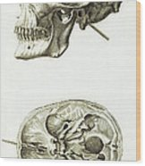 Skull With Head Wound, Illustration Wood Print