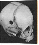 Trepanning: Skull Wood Print
