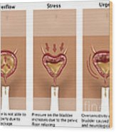Types Of Incontinence Wood Print