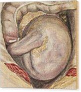 Volvulus Of Ascending Colon Wood Print