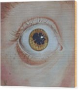 What's The Matter With Uveitis? Wood Print