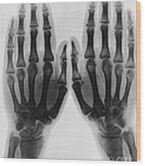 X-ray Of Two Normal Hands, 1896 Wood Print