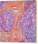 Breast Cancer, Light Micrograph Wood Print