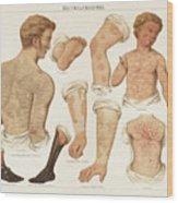 Skin Diseases, Chromolitograph Wood Print
