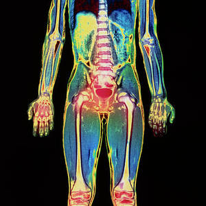 Coloured Mri Scan Of A Whole Human Body (female) Photograph