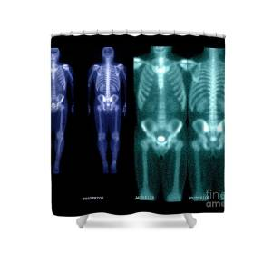 Bone Scan Shower Curtain For Sale By Medical Body Scans